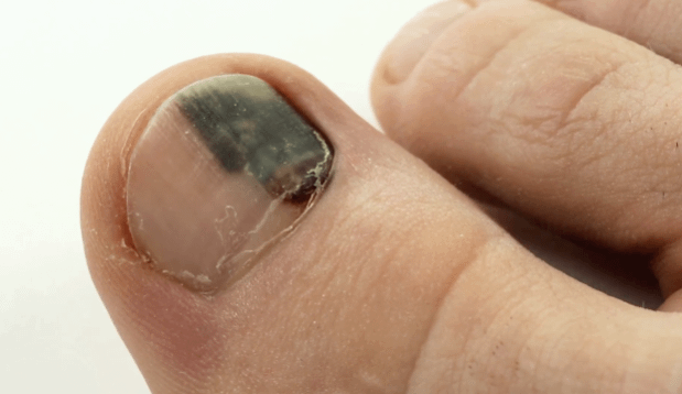 See how blood is in your nail bed with a Subungual hematoma