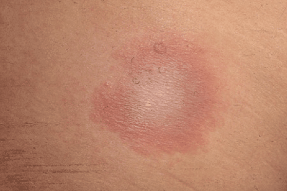 Lymes disease symptoms start with a rash in most cases