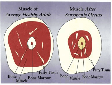 Avoid Sarcopenia through Super Slow weight training