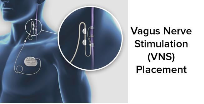 Vagus nerve stimulation through an electrical device