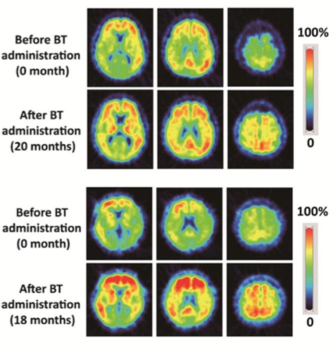 Brain Scans for Alzheimer's Treatment