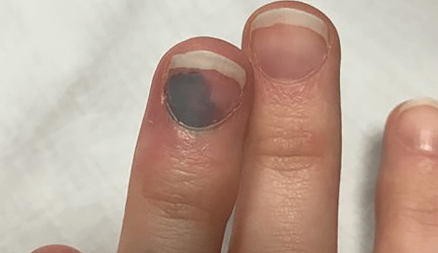 Subungual hematoma is an ugly condition that can be painful