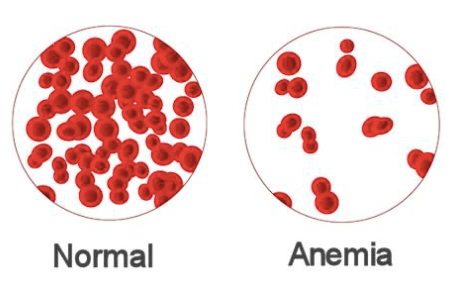 Vitamin B12 benefits improve anemia