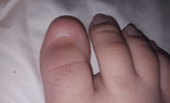 Even if you don't get a Subungual Hematoma, nail injuries are painful